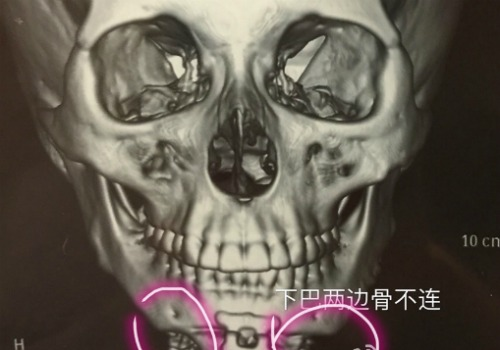 Shanghai Plastic Surgery Nightmare: Doctor's Sexual Abuse Scandal