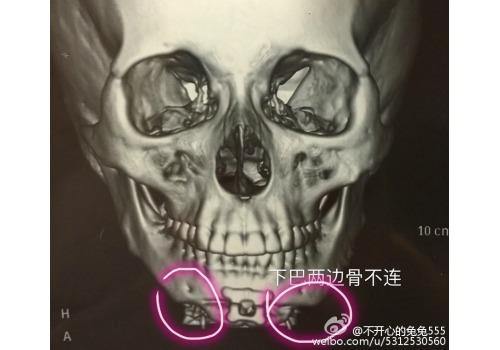 plasticsurgery2