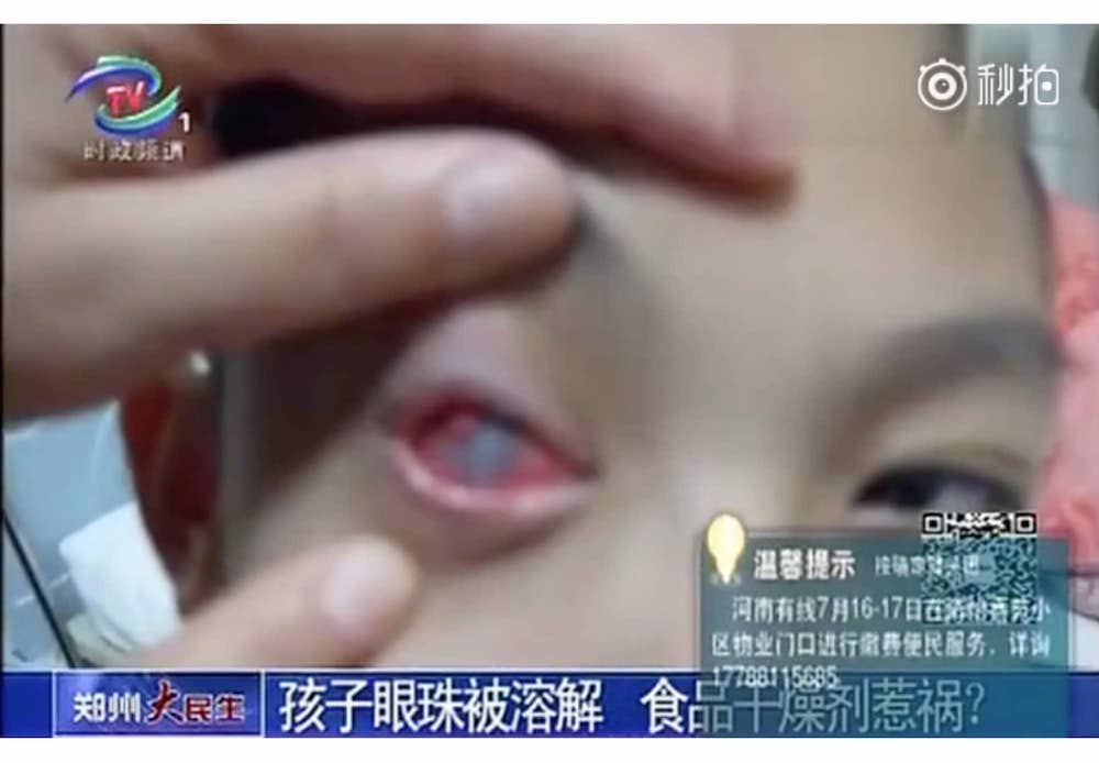 Right Eyebrow Twitching Superstition Chinese The Eyebrow
